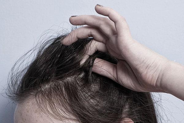 وسواس کندن مو-